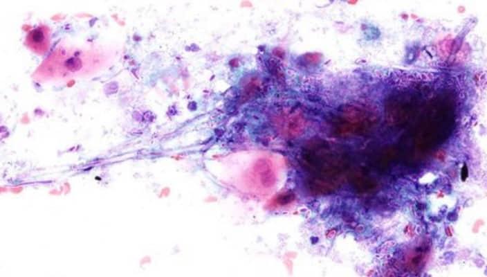 pruebas citopatologicas
