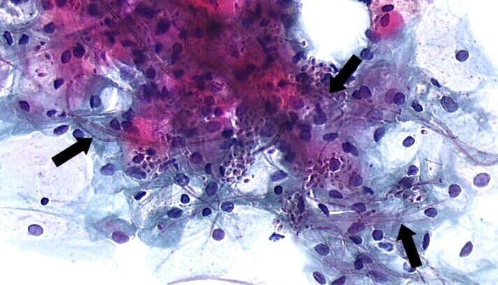 examen citopatológico