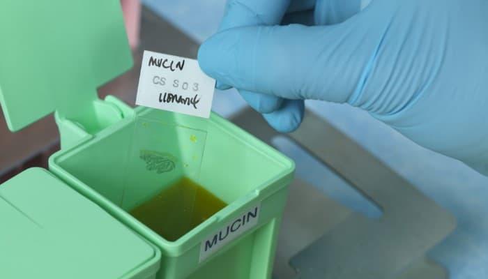 Histoquimica